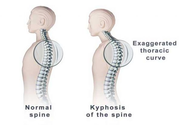 Causes of Kyphosis and Various Risk Factors